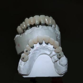 Макет челюсти. Стоматология Премьер в Орле